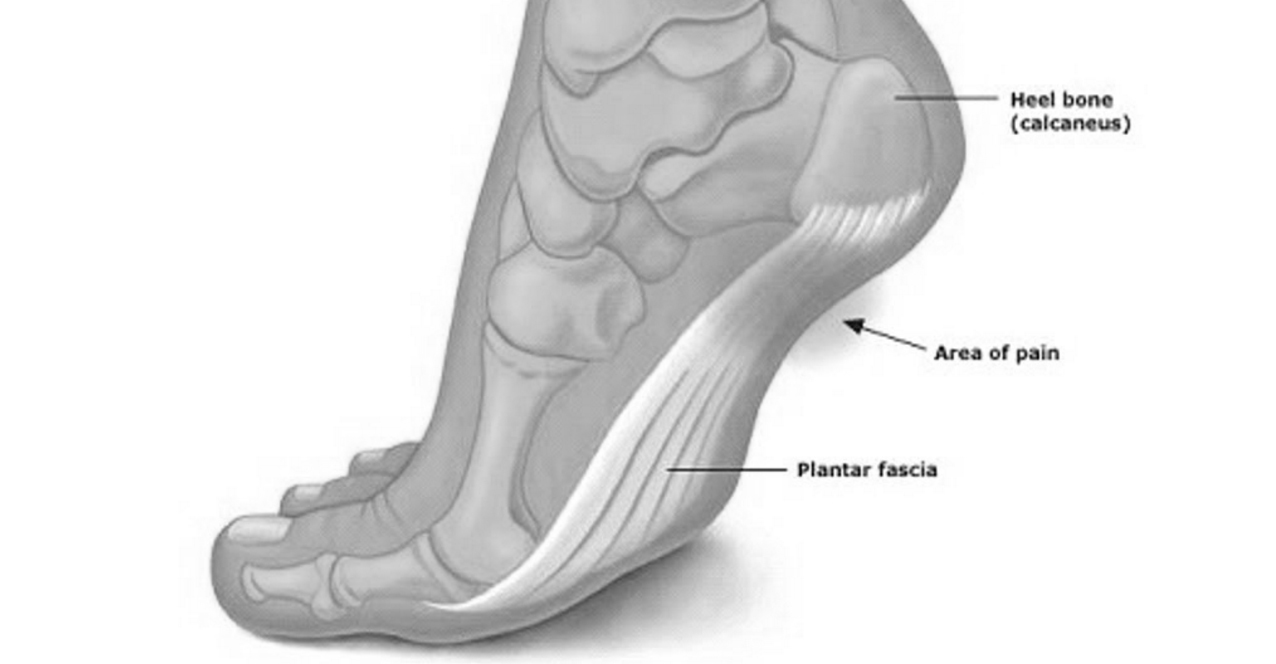 Plantar Fasciitis – Fix Your Feet!